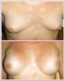Breast development in transsexual girls